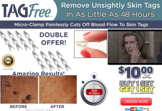 home at tag off supply skin to Cutting blood anal